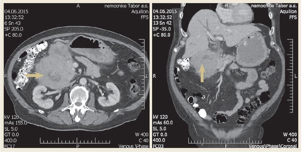Axiální a koronární řez – CT břicha demonstrující objemnou tumorózní masu v oblasti D1 a D2 (šipka). Fig. 2. Axial and coronal view – computer tomography of scan of abdomen demonstrating a large mass in the first and second part of the duodenum (arrow).