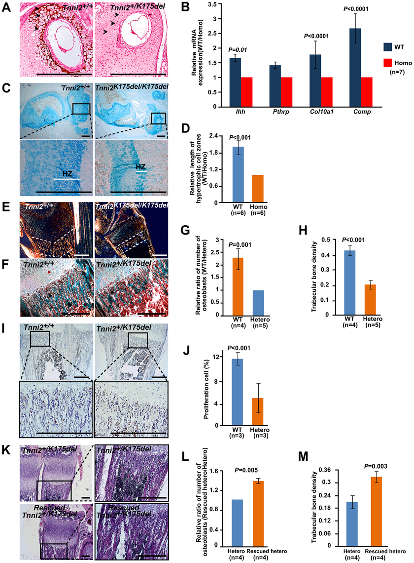 Chondrocytes differentiation and osteoblasts proliferation were impaired in mutant long bones.