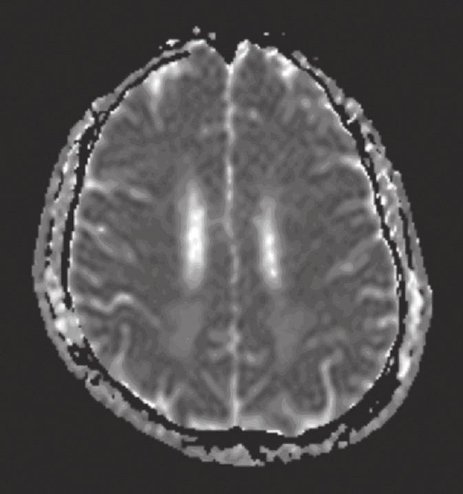 MR mozku: difuzně vážený obraz – ADC mapa (v odstupu jednoho měsíce): regrese hyperintenzity vazogenního edému, který přetrvává zčásti oboustranně okcipitálně.