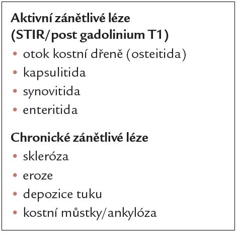Typické léze na sakroiliakálních kloubech u spondyloartritid při hodnocení MRI.