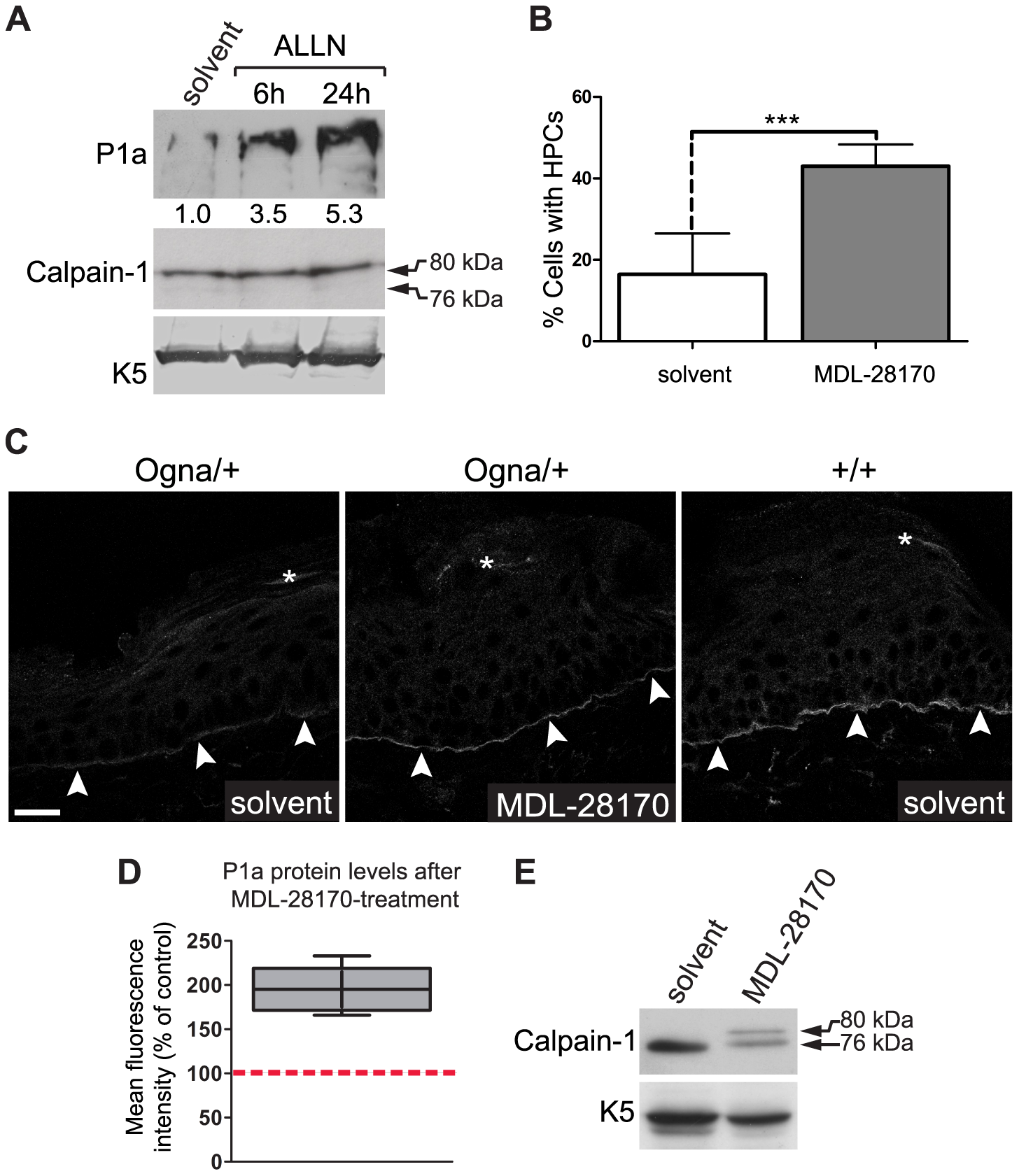 Calpain inhibitors restore P1a expression and HD formation in Ogna keratinocytes and Ogna mice.