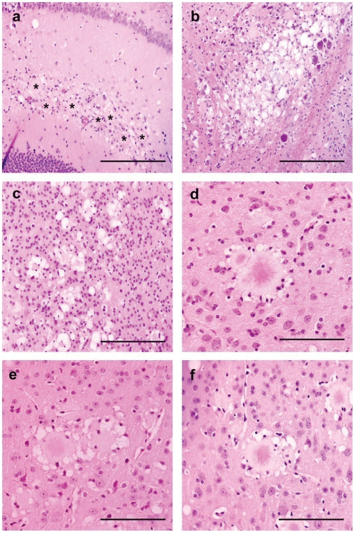 Brain vacuolar changes and amyloid plaques in transgenic mice for the human PRNP gene (methionine 129 variant - tg650).