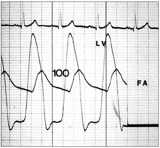Tlakový záznam ukazuje gradient přes aortální chlopeň.