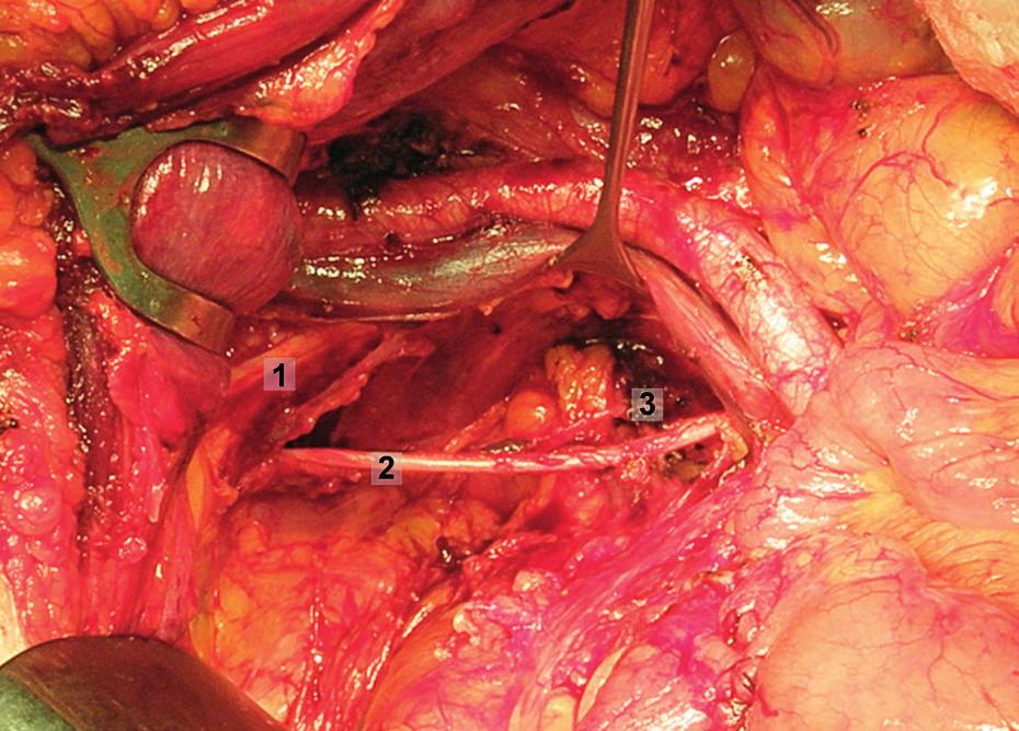 Systematická transperitoneální pánevní lymfadenektomie (pravá pánevní stěna) – pátý krok; obturatorní uzliny byly kompletně exstirpovány, odděleny od kosti stydké, obturatorního nervu a vnitřních ilických cév. 1 – stydká kost, 2 – obturatorní nerv, 3 – obturatorní arterie