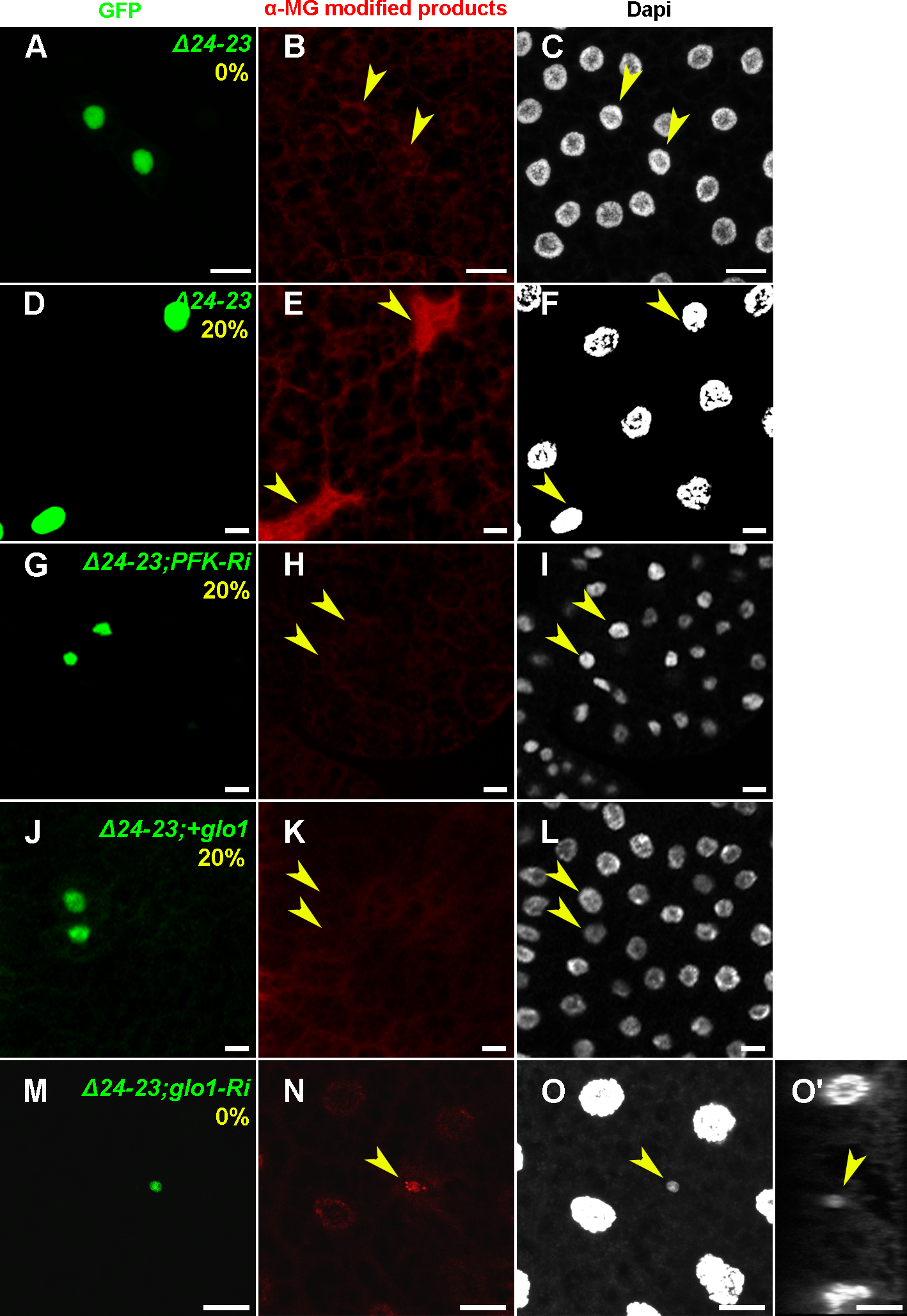 Cell-autonomous accumulation of MG-AGEs in <i>FASN</i> mutant FB cells.