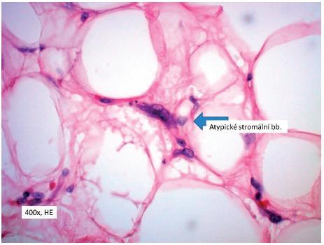 Atypické stromální buňky Fig. 5. Atypical stromal cells