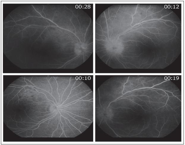 Časná fáze fluorescenčního angiogramu pravého a levého oka v horní polovině, v dolní polovině kontrolní fluorescenční angiografie pravého a levého oka po devíti dnech od zahájení terapie.
