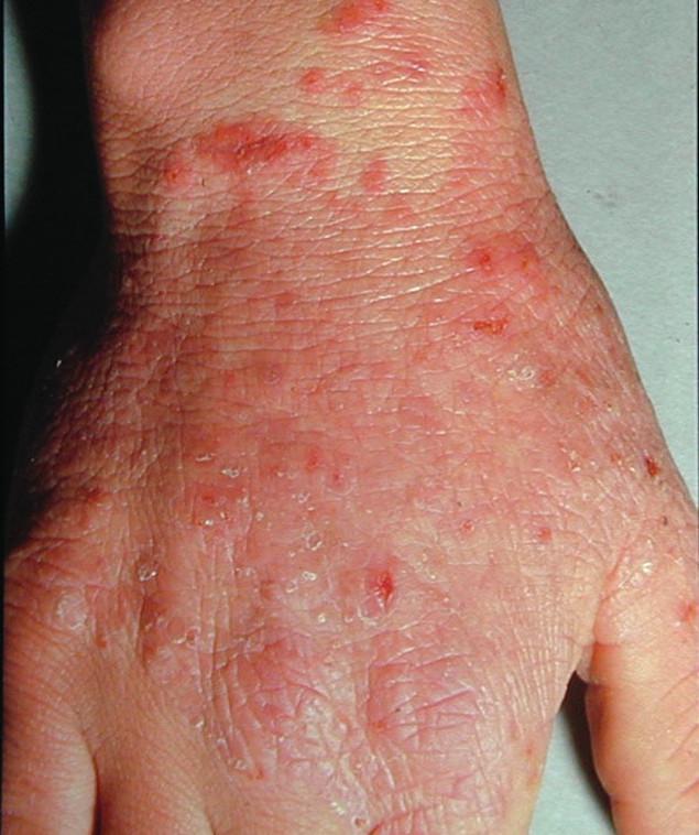 Typická rubrofycie (původce Trichophyton rubrum) na dorsu ruky