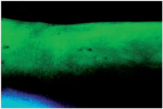 Fluorescence ložisek pityriasis versicolor ve Woodově světle