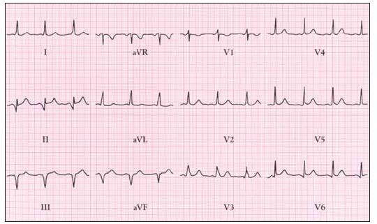 Syndrom preexcitace je přítomen u 20–25 % pacientů s Ebsteinovou anomálií. EKG ukazuje krátké P–Q a pravokomorovou preexcitaci.