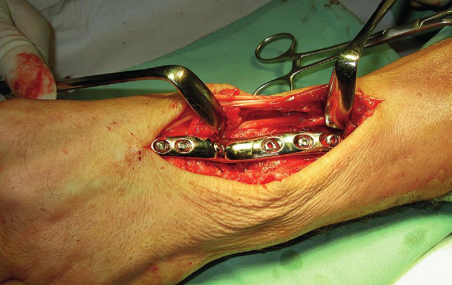 Artrodéza zápěstí – peroperační snímek