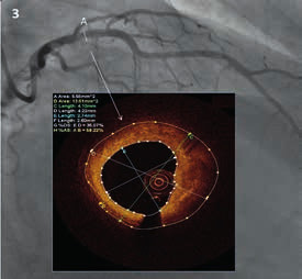 Reprezentativní obrázek shrnující angiografické a OCT nálezy