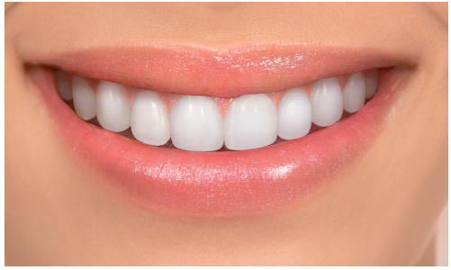 Fotografie atraktivního úsměvu mladé ženy jako báze pro tvorbu jednostranných změn tvaru frontálních zubů