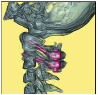 Pacientka s Downovým syndromem. Pooperační CT 3D snímek krční páteře s fúzí C1–C2.
