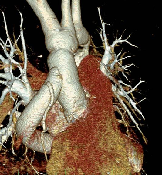 Obr. 3b. Chirurgické řešení pomocí extra-anatomického bypassu a náhrady dilatované ascendentní aorty cévní protézou.