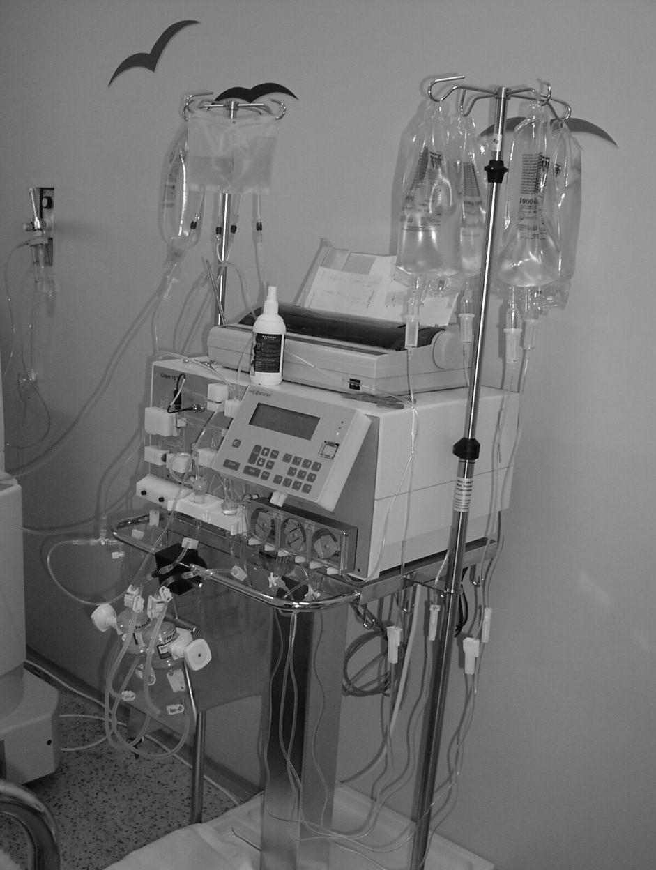 Fotografie sekundárního okruhu imunoadsorpce.