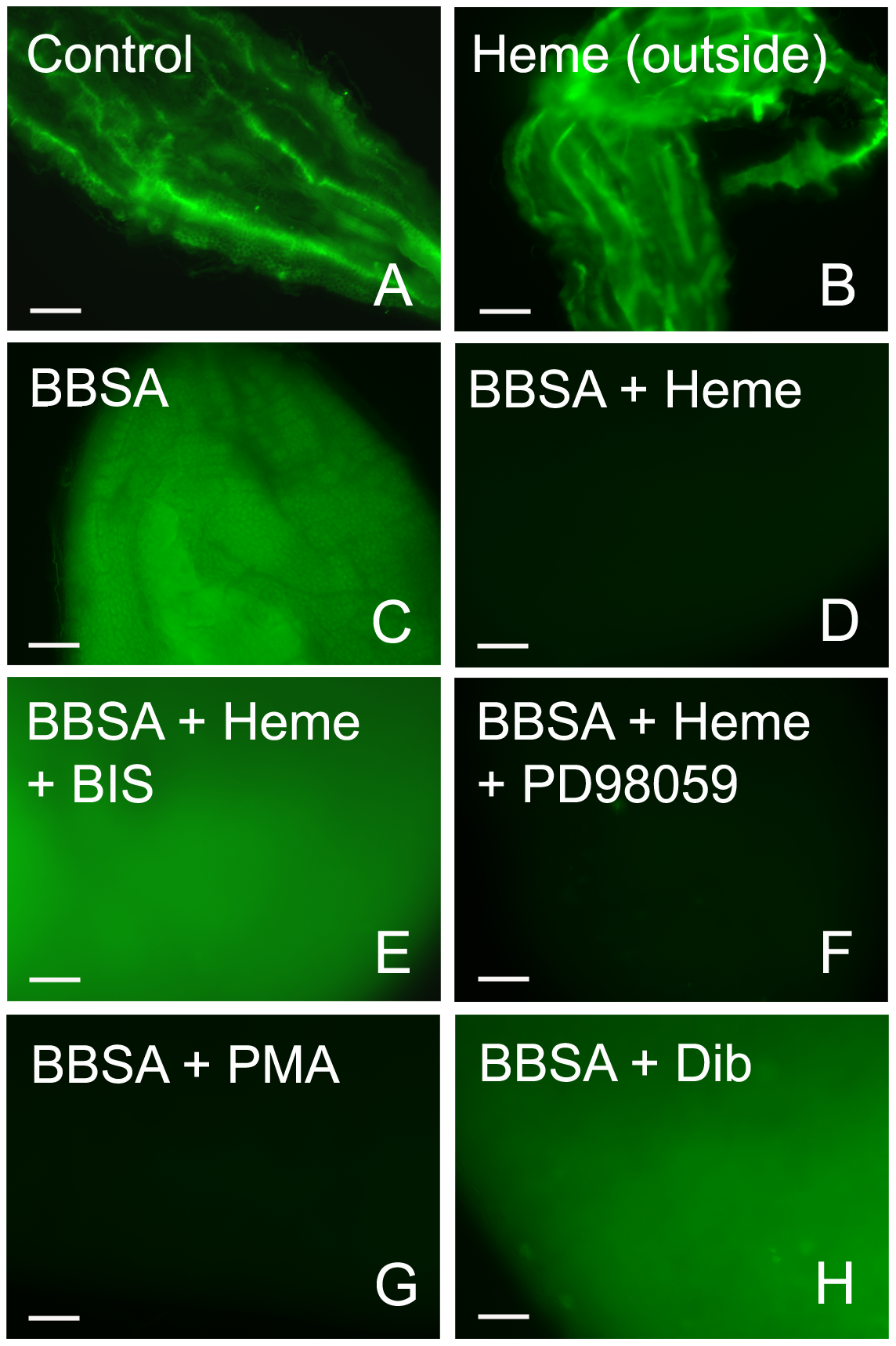 Heme-induced inhibition of ROS is mediated by PKC.