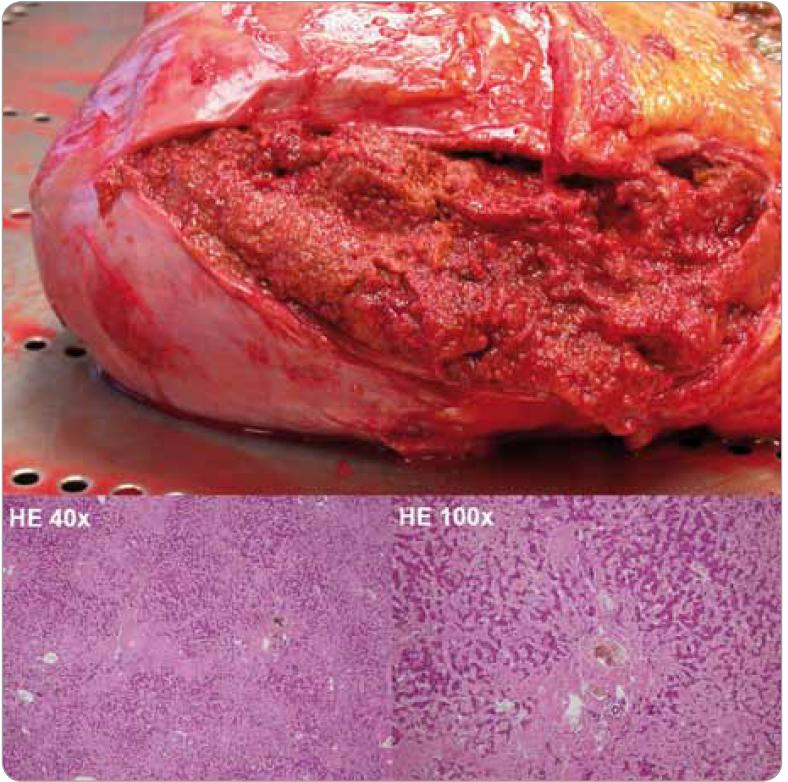 Fig. 2. Massive liver infiltration in AL amyloidosis. Hematoxylin-eosin staining (magnification 40× and 100×): extensive deposits of homogenous eosinophilic material in portal triads and perisinusoidal spaces.