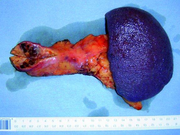 Resekát pankreatu s metasázou karcinomu ledviny.