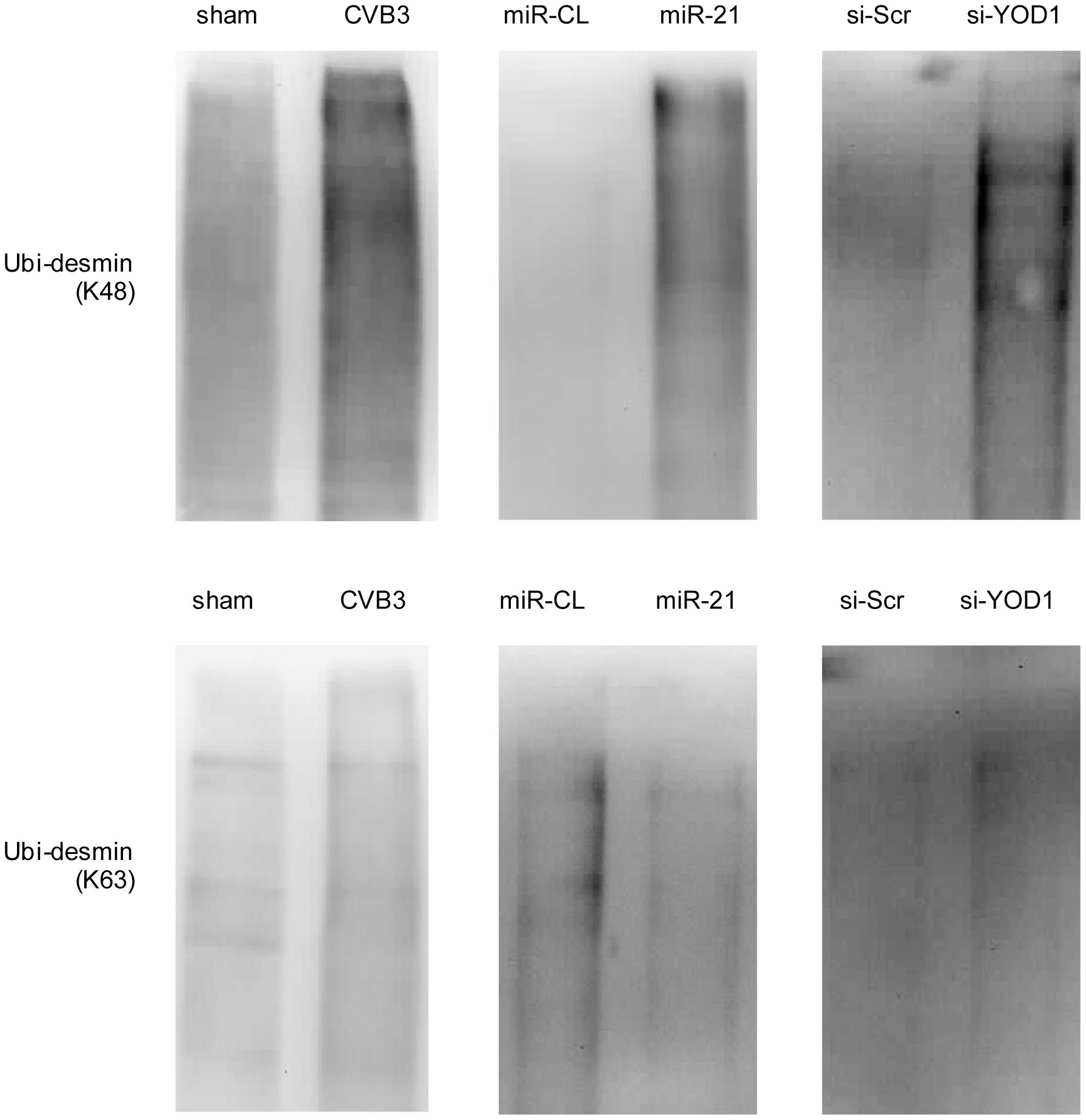 miR-21 mediates K48-linked polyubiquitination of desmin during CVB3 infection.
