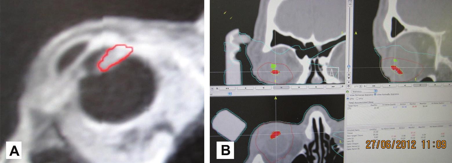 """MRI obraz pacienta so zakresleným tumorom v oblasti corpus ciliare s prerastaním smerom """"dopredu"""" a do komorového uhla (A) a zakreslenie tumoru corpus ciliare (červená farba) a šošovky (zelená farba) v plánovacej schéme rádiochirurgického ožiarenia na lineárnom urýchľovači (B)"""