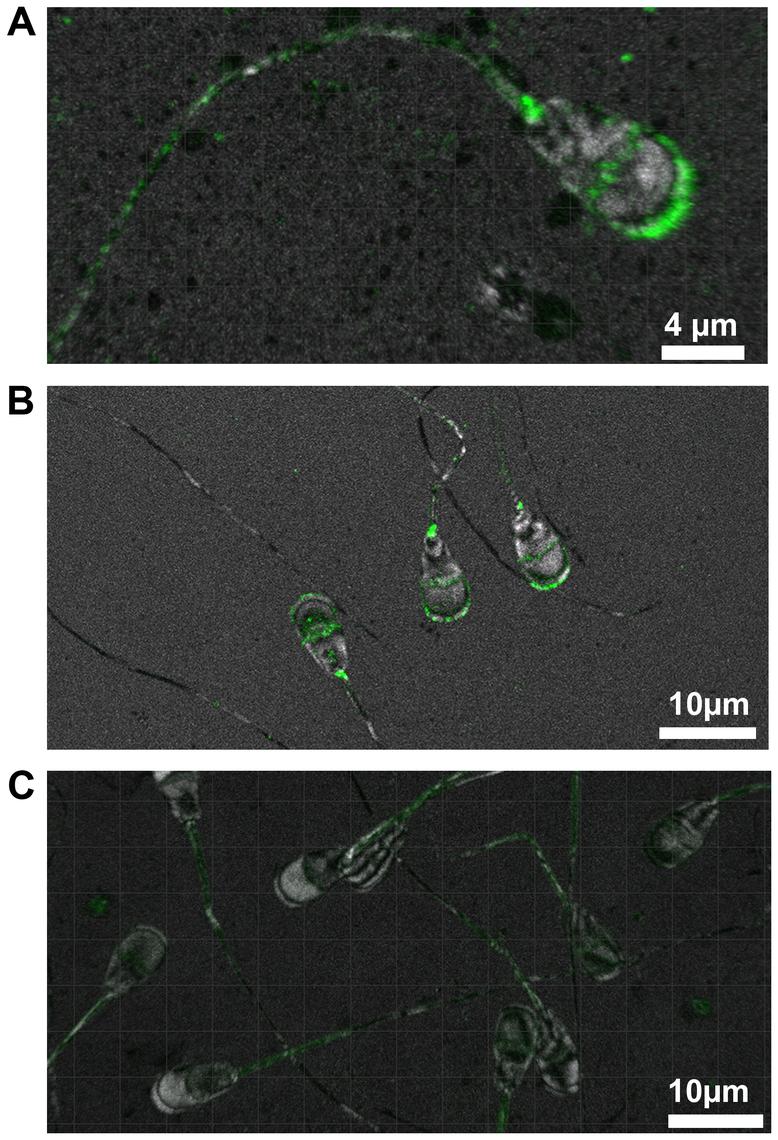 Immunohistochemical localisation of TMEM95.