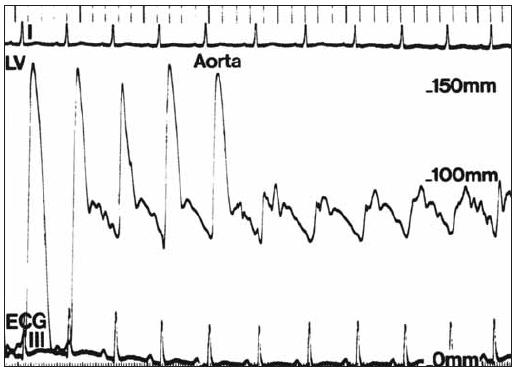 Tlakový záznam ukazuje gradienty u supravalvulární stenózy při stahovaní katétru z levé komory do aorty.