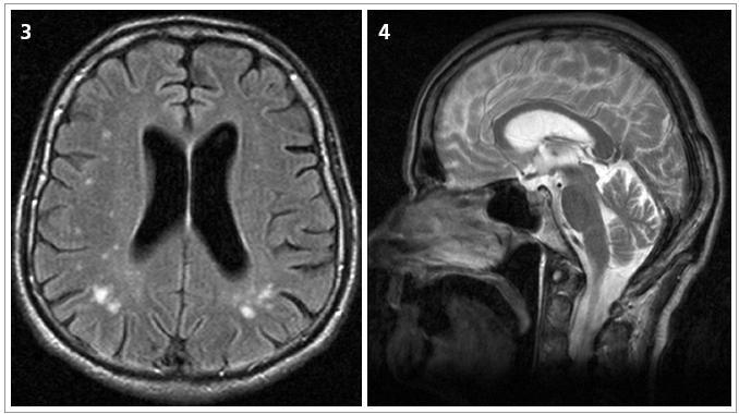 Obr. 3 a 4. Transverzální MRI scan FLAIR sekvence a sagitální MRI scan T2 vážený obraz 62letého muže trpícího parkinsonským syndromem s kognitivním deficitem a syndromem ALS, s nálezem difuzní mozkové atrofie a atrofie mozečku s mnohočetnými drobnými hyperintenzitami v bílé hmotě (pacient č. 2).