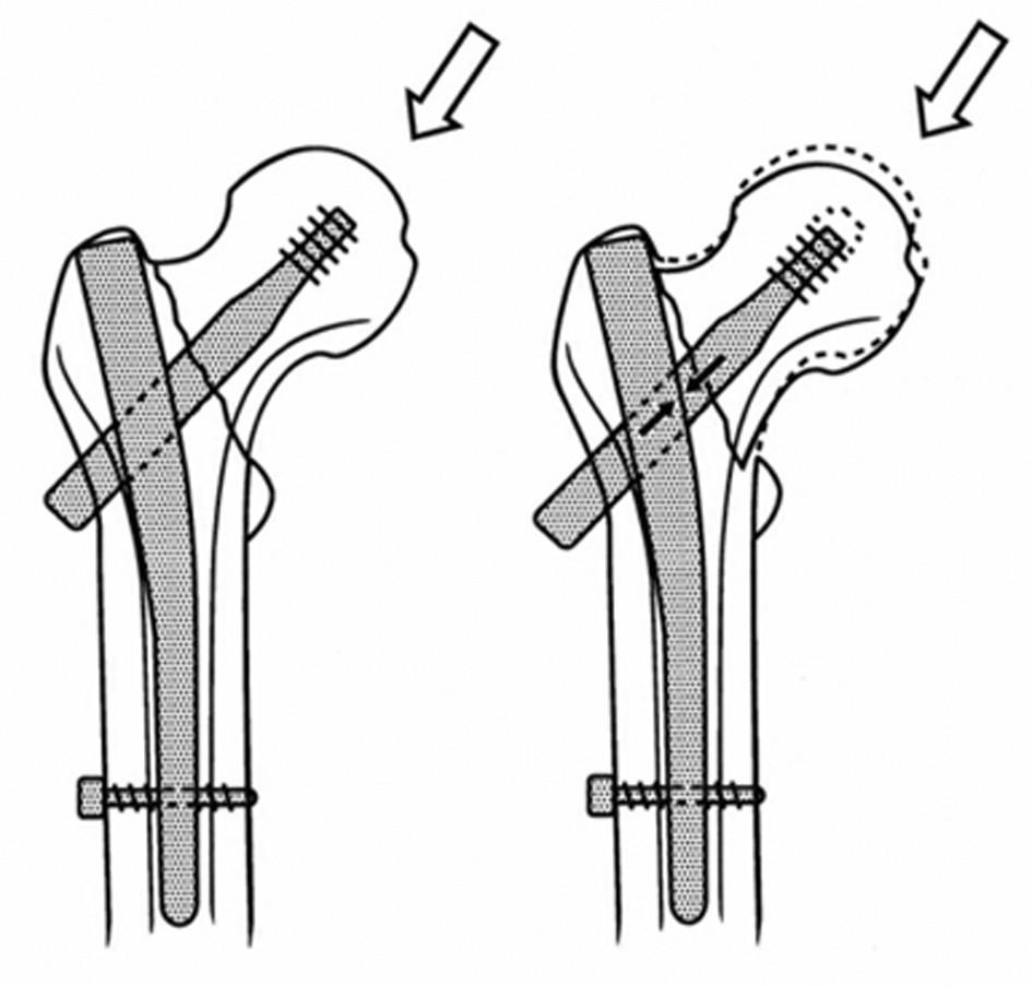 Medializace diafýzy femuru u nestabilní pertrochanterické zlomeniny stabilizované DHS Po zatížení dochází ke kompresi fragmentů, mediální kortikalis obou hlavních fragmentů ztrácejí kontakt, medializace se zastaví po vyčerpání skluzného mechanismu. Fig. 4: Medial displacement of the femoral shaft in unstable pertrochanteric fractures stabilized by DHS Loading results in compression of the fragments, medial cortex of both main fragments lose contact, medial displacements stops after exhaustion of the gliding mechanism.
