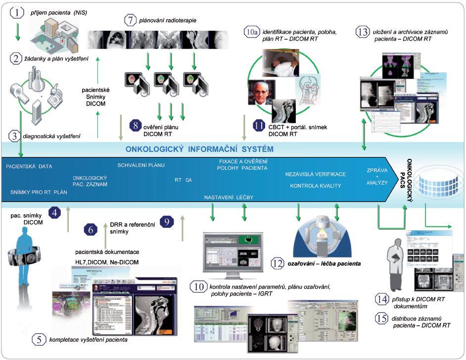 Obrázkové schéma popisuje obecné procedury zahrnuté v plánování radioterapie a vlastní radioterapii současně s datovými toky pacientských a obrazových informací.