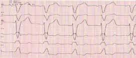 Blokáda ľavého Tawarovho ramienka so šírkou QRS komplexu 160 ms. Vo zvode V<sub>1</sub> je prítomný hlboký S kmit, naopak absentuje R kmit. Vo zvode V<sub>5</sub> nadobúda QRS komplex morfológiu RsŔ (materiál Kliniky kardiológie LF UPJŠ a VÚSCH a.s., Košice)