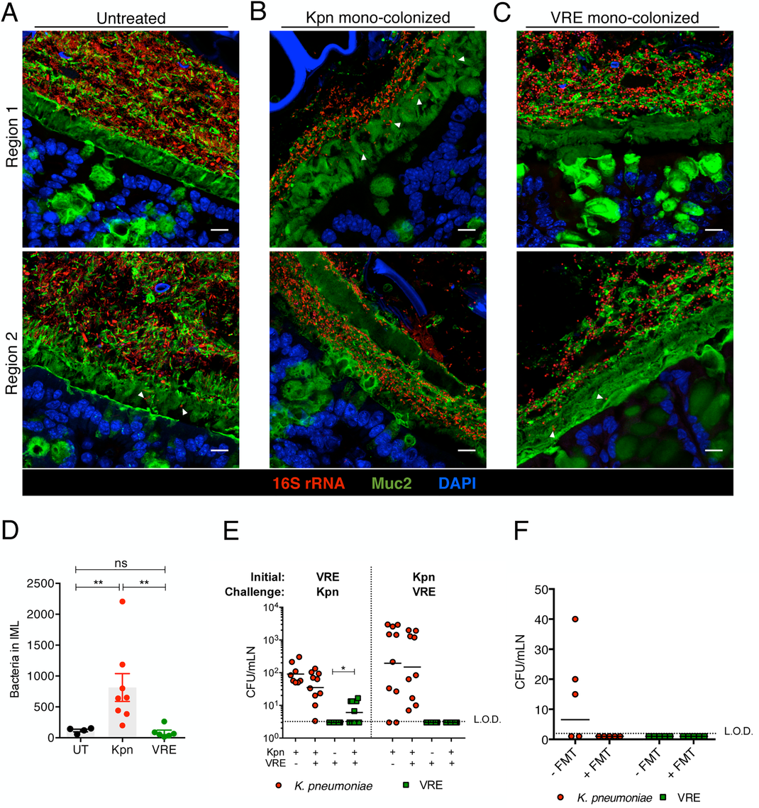 Differential mucus layer infiltration and translocation by VRE and K. <i>pneumoniae</i>.