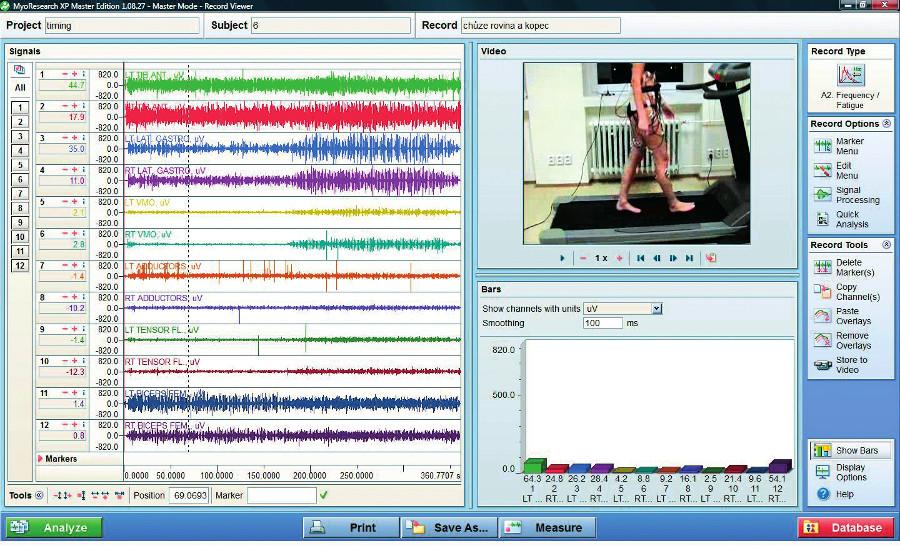 Analýza naměřených dat v programu MyoResearch XP Master Edition.