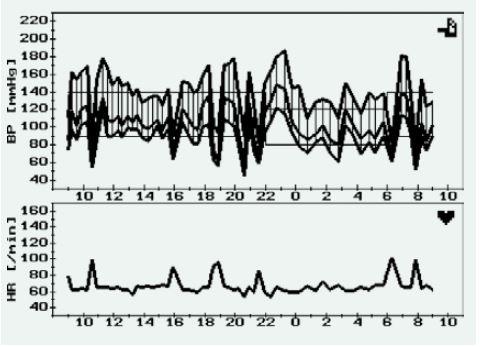 Záznam 24hodinového monitorování krevního tlaku u pacienta s mnohočetnými funkčními paragangliomy (krk, mediastinum) s opakovanými náhlými vzestupy a poklesy krevního tlaku, které jsou doprovázeny vzestupem srdeční frekvence