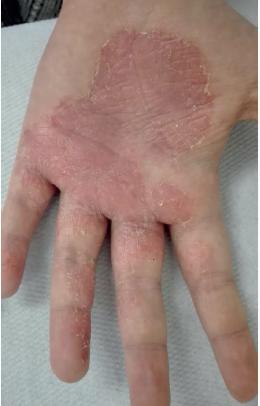 Před léčbou: ložisko s ragádami a exkoriacemi