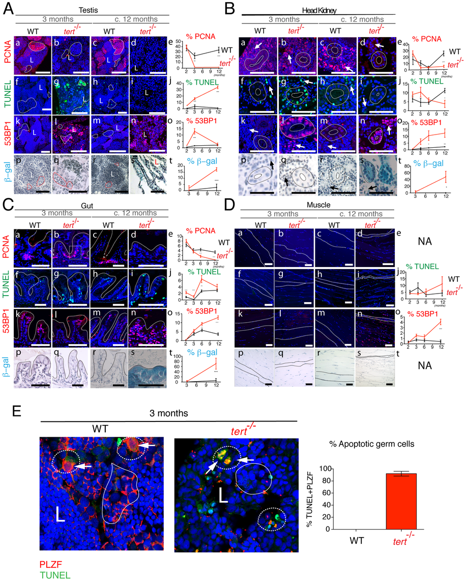 Proliferative tissue degeneration is accompanied by a sustained decrease in proliferation, acute apoptotic responses, and progressive accumulation of DDR foci.