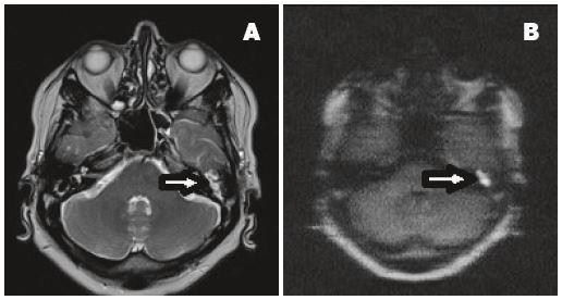 MR spánkové kosti , technika non-echo-planárního difuzně váženého zobrazení (non-EPI DWI), axiální rovina.