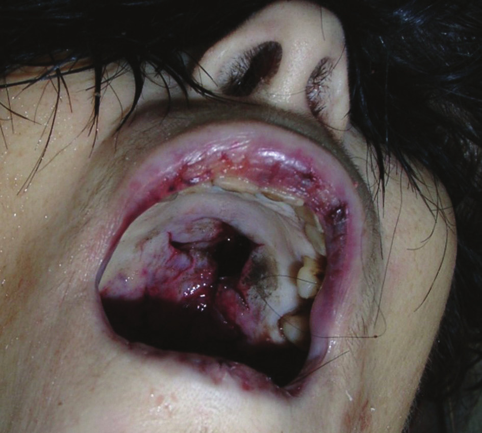 Otvor vstrelu na tvrdom podnebí ústnej dutiny s cípovito roztrhnutými a očadenými okrajmi.