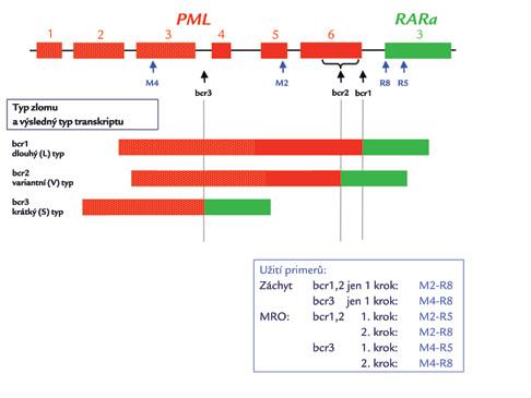 Schematické zobrazení zlomových míst (bcr – breakpoint cluster region) genu PML a výsledných typů transkriptů PML/RARa.