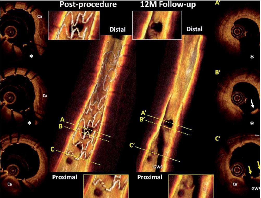 Optická koherentní tomografie časně po implantaci a v jednoročním odstupu, vstřebatelný stent Absorb BVS (Abbott Vascular, CA, USA).