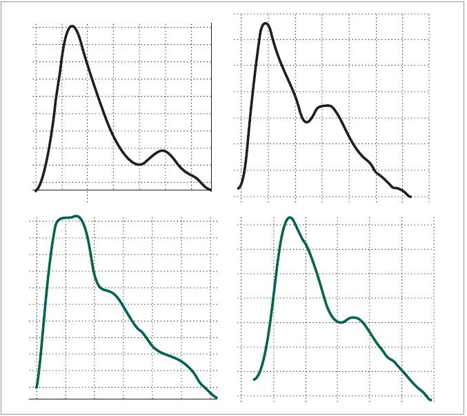 Srovnání křivek periferní pulzové vlny v klidu a za bolestivého prožitku. Na křivce zaznamenané během bolestivého výkonu (dole) je patrno na první vlně rozštěpení 1. kmitu s rozpadem dikrocie, na 2. vlně oploštění a rozšíření 1. kmitu. Oproti kontrole (horní křivka) u obou vln došlo k opoždění nástupu 2. kmitu.