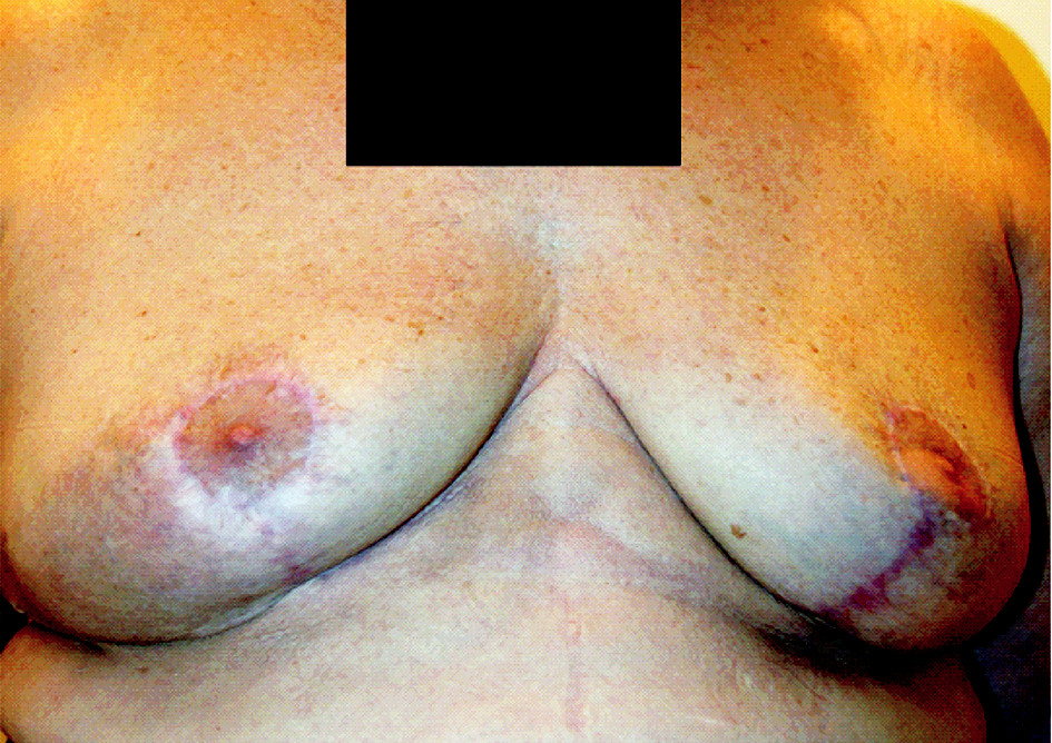 Fig. 2. Three months after reductive breast surgery: left part of the image wounds treated with the new gel, right part control
