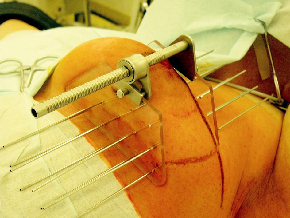 Provedení intersticiální brachyterapie lůžka tumoru po parciální mastektomii pomocí jehel a můstku Fig. 1. Interstitial brachytherapy procedure of a tumor focus after partial mastectomy, using needles and a bridge