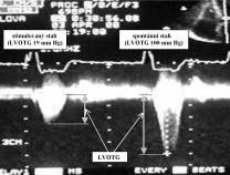 Gradient ve výtokovém traktu levé komory (LVOTG) při stimulovaném a spontánním stahu.