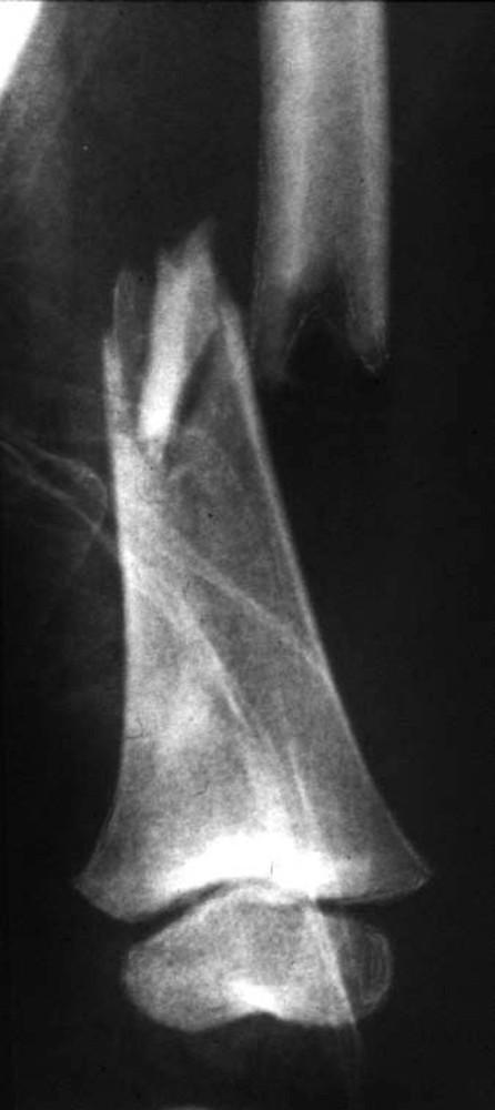 Obr. 3a. Příčná tříštivá zlomenina diafýzy femuru u tříletého hocha