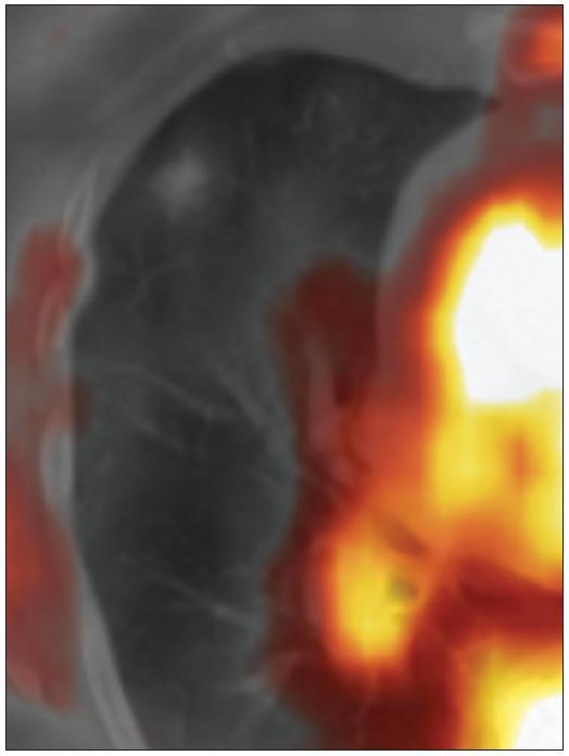 <sup>18</sup>F-FDG-PET/CT (06/2010). V ložisku není patrna patologická hyperutilizace glukózy.