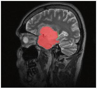 Volumetrie pomocí semiautomatické segmentace: manuální ohraničení oproti objemu mozkové komory (pacientka N.5: pooperační snímek obr. 7a).