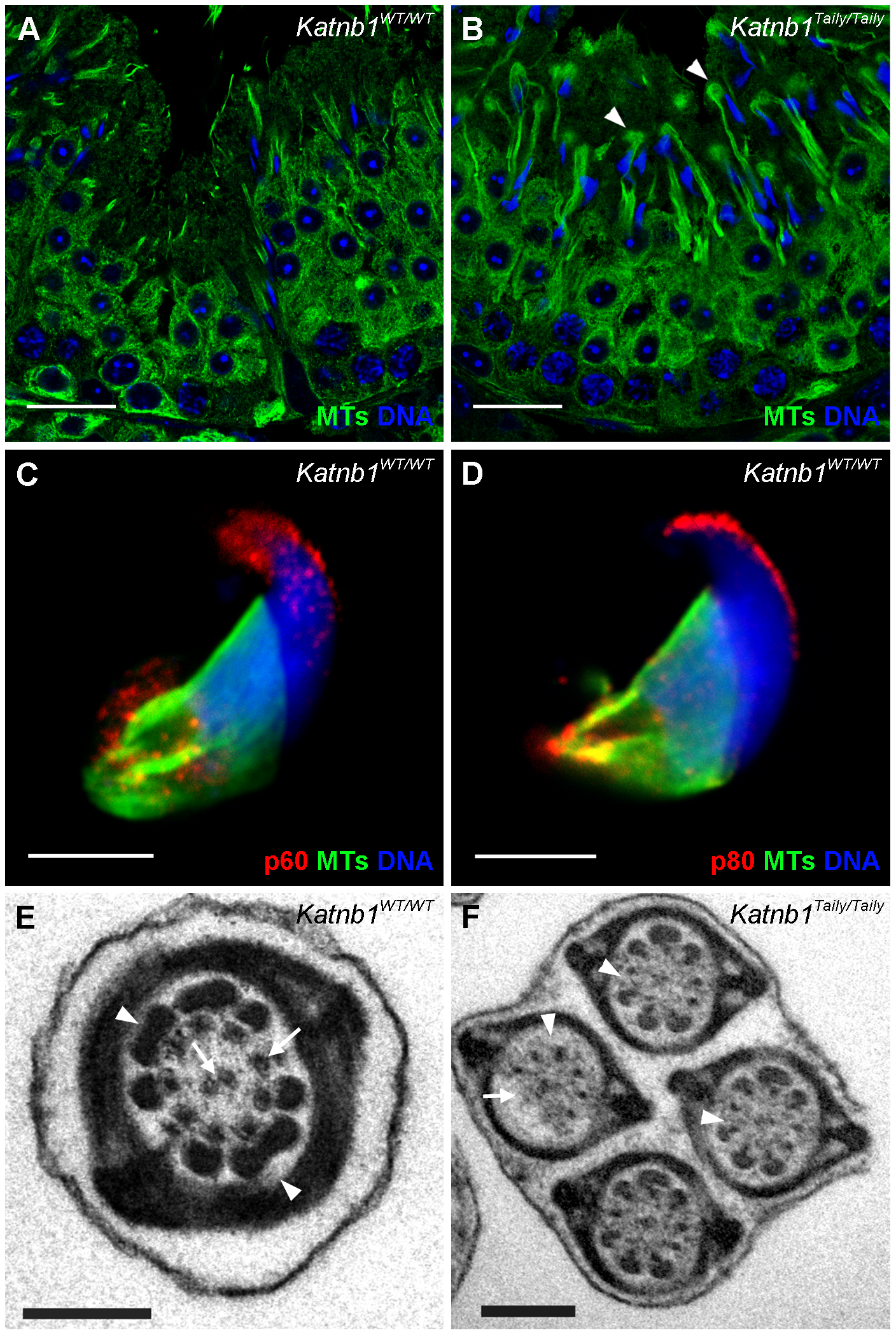 Katanin localization to manchettes and abnormalities in manchette resolution and flagella structure in <i>Katnb1<sup>Taily/Taily</sup></i> spermatids.