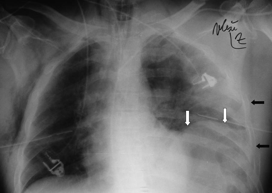 Oboustranná hrudní drenáž pro PNO na místě autonehody Vpravo podkožní emfyzém. Vlevo rozsáhlá sériová fraktura žeber (tmavé šipky), elevace bránice s atypickou konfigurací a plynem vysoko pod bránicí (bílé šipky), kontuze levé plíce, přesun mediastina a trachey doprava.