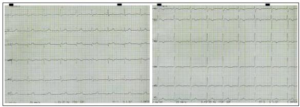 Elektrokardiografický záznam pacientky z 12. 2. 2003 při prvním kardiologickém vyšetření pro námahové bolesti na hrudi. Ve V1–V3 je negativní vlna T, v aVL vlna T ploše negativní, ve V4 oploštělá.